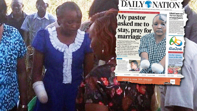 Ehe blieb kinderlos: Frau beide Hände abgehackt (Bild: twitter.com/Chika Oduah, Daily Nation)