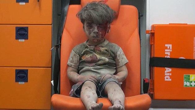 Ein verletztes Kind in Aleppo: Ein Bild, das ber�hrt. (Bild: AP)