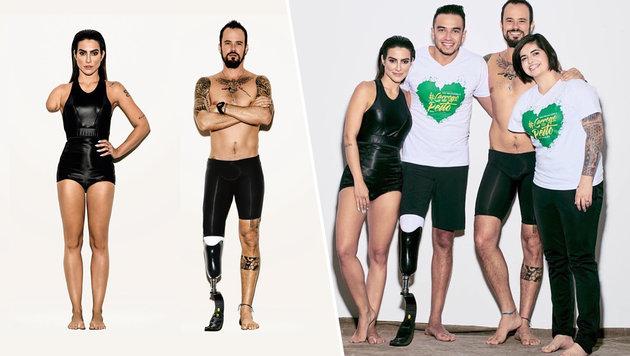 """Vogue"": Photoshop statt echter Behinderung (Bild: instagram.com/voguebrasil, instagram.com/bruninha_alexandre)"