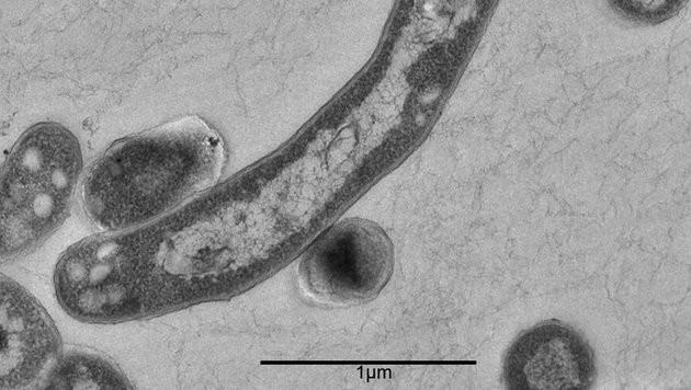 So sieht der Tuberkulose-Erreger unter dem Mikroskop aus. (Bild: APA/rki/Rki/Gudrun Holland)