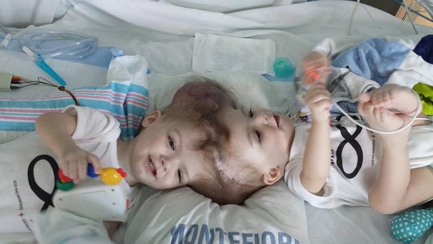 Anias und Jadon wurden in einer 27-stündigen Operation getrennt. (Bild: facebook.com/NickiMar14)