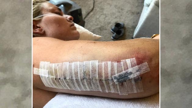 Nach ihrem Oberarmbruch schockt Lindsey Vonn ihre Fans mit dieser OP-Narbe. Gute Besserung! (Bild: twitter.com)