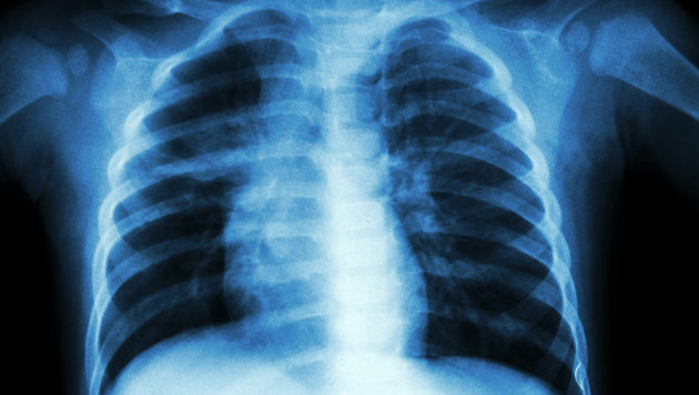 Tuberkulose-Alarm in OÖ: 50 mögliche Ansteckungen (Bild: thinkstockphotos.de)