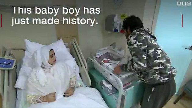 Zum ersten Mal wurde eine Frau Mutter, der vor der Pubertät ein Eierstock entnommen worden war. (Bild: BBC)