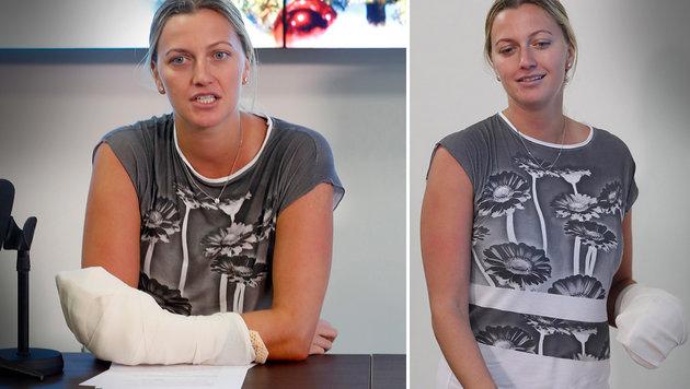 Nach Messer-Attackte: Kvitova zeigt verletzte Hand (Bild: AP)
