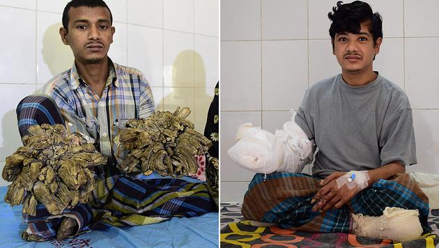 """Baummann"" von Bangladesch so gut wie geheilt (Bild: APA/AFP/MUNIR UZ ZAMAN, APA/AFP/SAM JAHAN)"