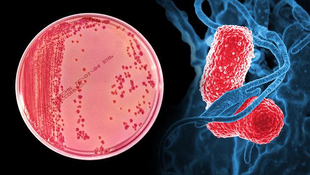 26 Antibiotika halfen nicht: US-Amerikanerin tot (Bild: CDC, NIAID)