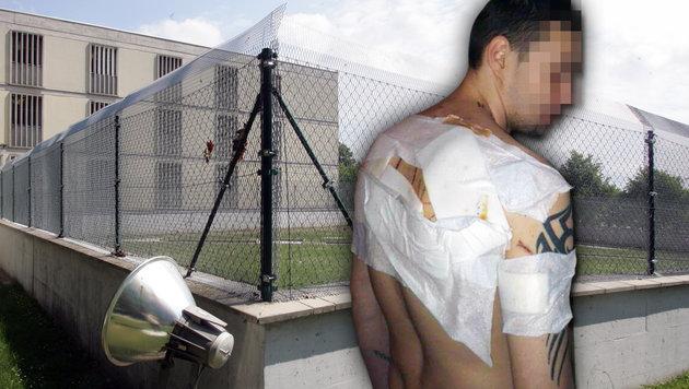 Schnittwunden am ganzen Rücken trug Häftling Dominik P. bei der Attacke in der Haftanstalt davon. (Bild: ANDI SCHIEL, Privat)