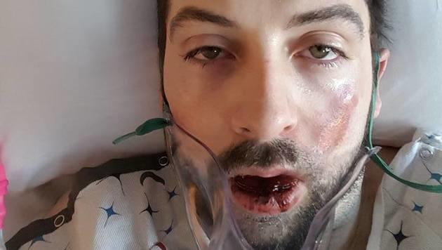 E-Zigarette explodiert: Mann verliert sieben Zähne (Bild: Facebook/Andrew Hall)
