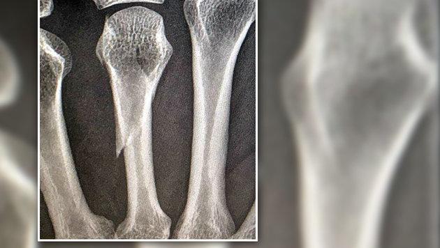 Das Röntgenbild zeigt den Bruch des Ringfingers.