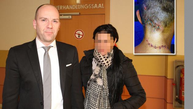 Asylwerber zerschnitt Frau (28) das Gesicht (Bild: Andreas Schiel, privat)