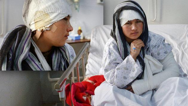 Ehemann schnitt junger Afghanin beide Ohren ab (Bild: APA/AFP/FARSHAD USYAN)