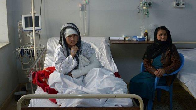 Ehemann schnitt junger Afghanin beide Ohren ab (Bild: AFP or licensors)