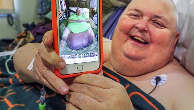 Roger Logan wurde ein riesiger Tumor entfernt. (Bild: AP)