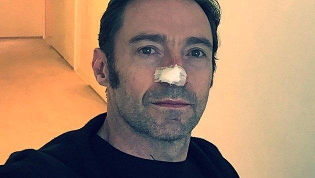 """""""Ein neues Basalzellkarzinom"""", schrieb Hugh Jackman auf Twitter. (Bild: twitter.com/Hugh Jackman)"""