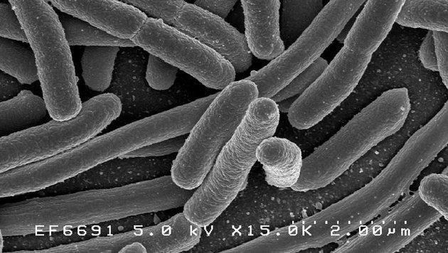 Ein Eschericheria-coli-Bakterium unter dem Elektronenmikroskop (Bild: Rocky Mountain Laboratories, NIAID)