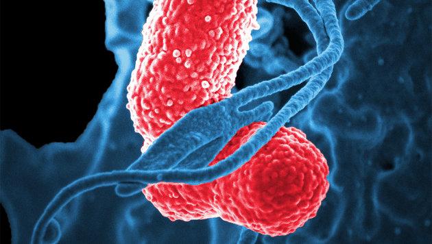 Klebesiella-pneumoniae-Keime (rot koloriert) unter dem Elektronenmikroskop. (Bild: NIAID)