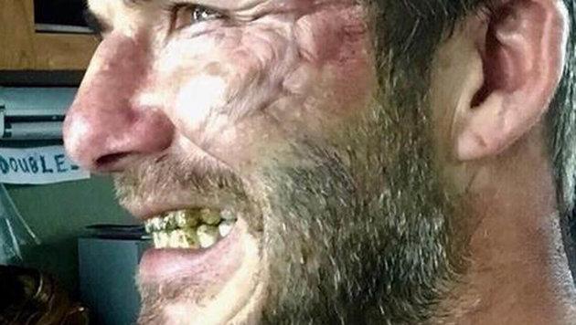"""Der ehemalige """"Sexiest Man Alive"""" schockt mit Narbengesicht und Ekelzähnen. (Bild: Viennareport)"""