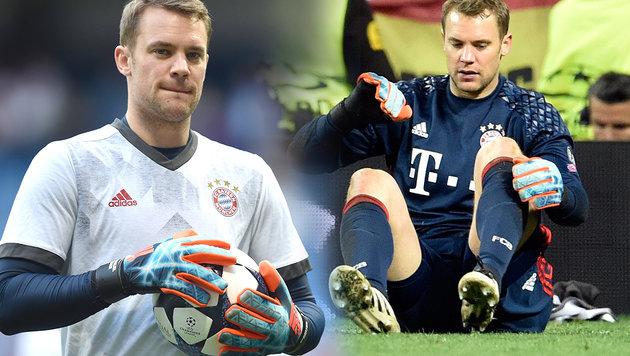 Bayern-Goalie Neuer muss NICHT operiert werden! (Bild: AFP)