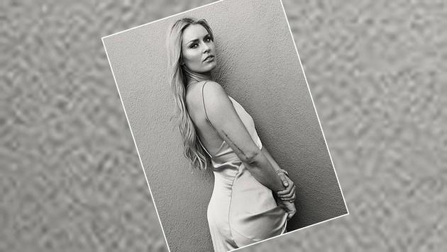 """Lindsey Vonn zeigt ihre Riesen-Narbe. """"Was mich nicht umbringt, macht mich stärker"""", schreibt sie. (Bild: Instagram)"""