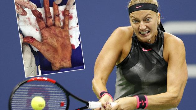 Kvitova: Nach Messer-Horror nun der Titeltraum (Bild: AP, twitter.com)