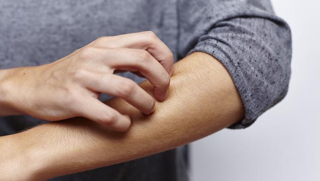 Wie wirkt sich die Psyche auf Psoriasis aus? (Bild: miamariam/stock.adobe.com)