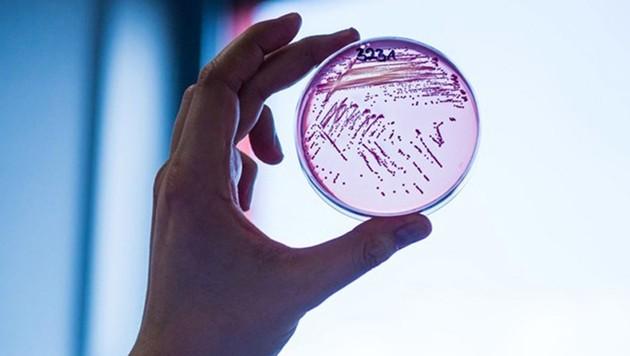 Ein Abstrich der multiresistenten E.-coli-Bakterien (Bild: Universität Gießen/Pressestelle)
