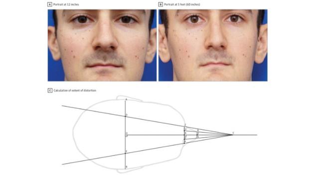 Die Nase auf dem linken Bild wirkt durch die Smartphone-Perspektive 30 Prozent größer als auf dem rechten Bild.