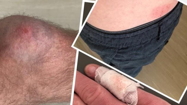 Verletzungen die Christian L. bei dem Vorfall erlitten hat.
