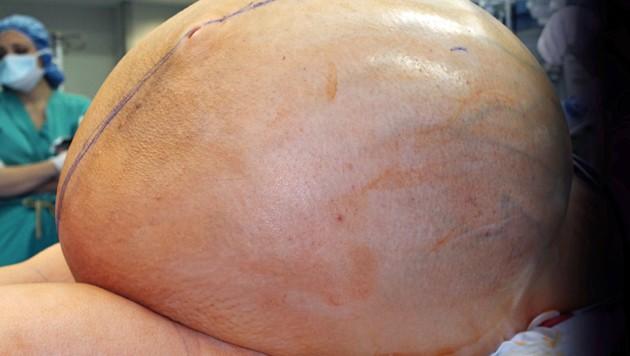 Ärzte rätseln über die Gründe für das rasante Wachstum des Eierstock-Tumors bei der 38-Jährigen, die ihre Identität geheim halten möchte. (Bild: AP)