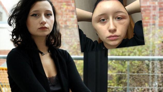 Studentin Färbt Sich Haare Und Stirbt Danach Fast Kroneat