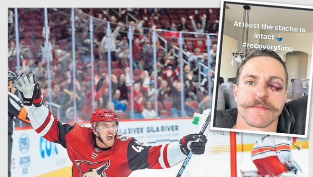 Wegen seiner argen Augenverletzung ist NHL-Star Michael Grabner seit Dezember out – eine Linse soll helfen, dass er bald wieder über Tore jubeln kann. (Bild: Joe Campreale, Instagram Grabner)