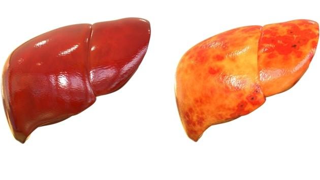 Die Fettleber (re.) kann ihre Aufgabe auf Dauer im Körper nicht mehr richtig erledigen. (Bild: magicmine/stock.adobe.com)