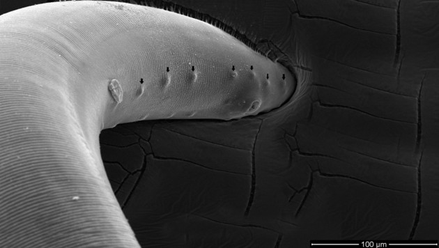 """Elektronenmikroskopische Aufnahme des """"orientalischen Augenwurms"""" (Bild: Wikipdia/Wilfried Lebon et al., krone.at-Grafik)"""