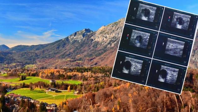 Verena K. freute sich auf Großgmain, dann kam die Schockdiagnose Krebs (Ultraschallbild). (Bild: zVg, Silvia Jörg, krone.at-Grafik)