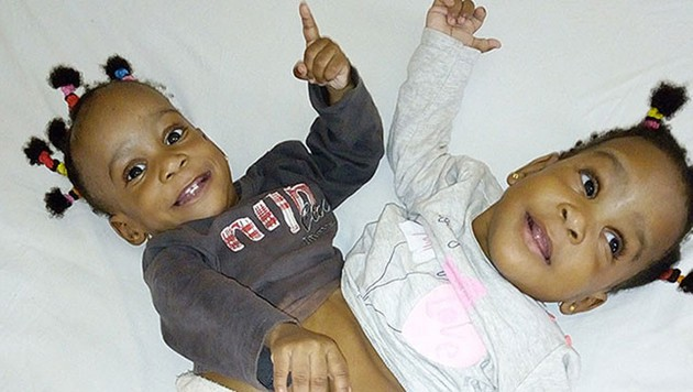 Bissie and Eyenga waren an Bauch und Hüfte verbunden. (Bild: La Chaîne de l'espoir)
