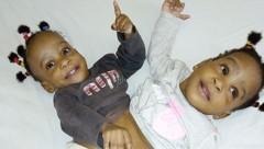 Bissie and Eyenga waren an Bauch und Hüfte verbunden gewesen. (Bild: La Chaîne de l'espoir)