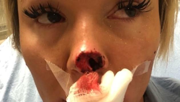 Allyson wird im März operiert. (Bild: Graf Viktoria)