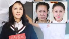 (Bild: Shenyang Sunline Plastic Surgery, krone.at-Grafik)