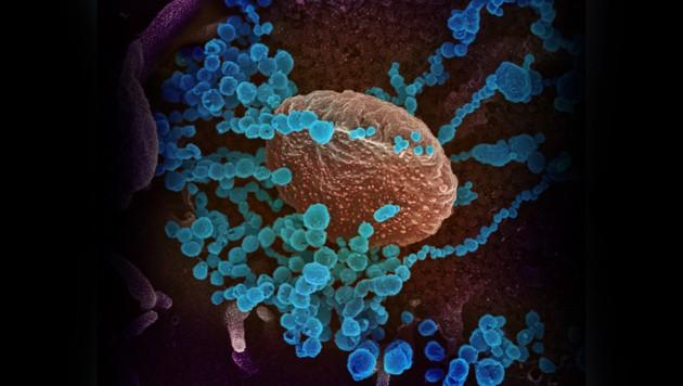 Elektronenmikroskopische Aufnahme des Coronavirus SARS-CoV-2 (hellblau) (Bild: NIAID-RML)