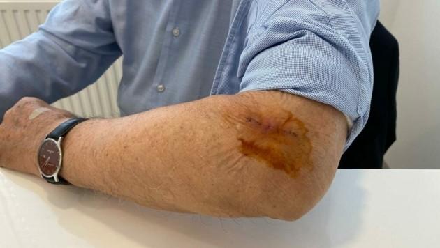 Richard Lugner zeigt seine Operationsnarbe (Bild: Richard Lugner)