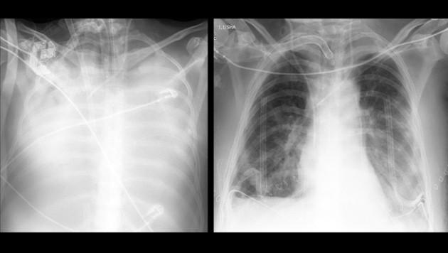Weiße Punkte Auf Der Lunge
