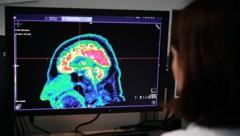 Positronenemissionstomographie eines Gehirns (Bild: APA/AFP/Fred TANNEAU)