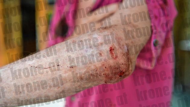"""Beim Besuch der """"Krone"""" zeigt Ernst August seine Verletzungen an Hand, Gesicht, Brust und Ellbogen. (Bild: Klemens Fellner, krone.at-Grafik)"""