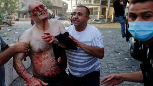 Hunderte Menschen wurden durch die Explosion verletzt. (Bild: AP)