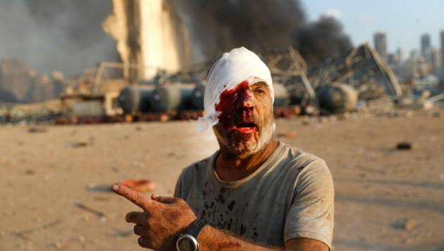 Einer von Tausenden Verletzten, die nach den Detonationen blutend durch die Straßen Beiruts herumirrten. (Bild: AP)