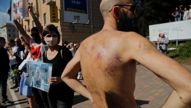 Dieser Mann zeigt Verletzungen, die ihm in der Haft nach den eskalierten Demonstrationen zugefügt wurden. (Bild: AP)