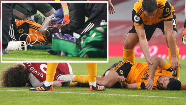 Wolverhampton-Stürmer Raul Jimenez blieb nach dem Zusammenstoß mit David Luiz bewusstlos liegen.