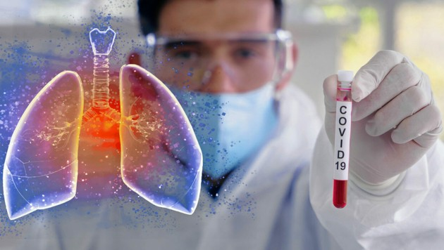 (Bild: Mongkolchon -stock.adobe.com)
