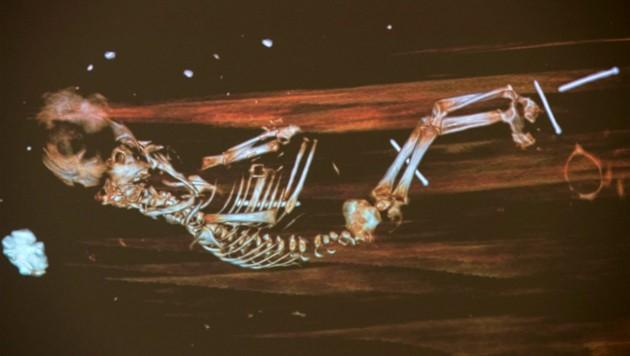 Das Röntgenbild des Fötus im Sarg des Bischofs Peder Winsdrup (Bild: Lund University/Gunnar Menander)